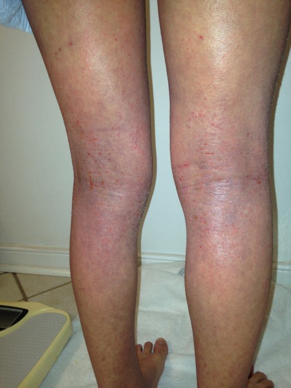 Purplish Legs