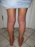 legs healing 1/10-1/11