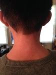 posterior neck 3/3/14