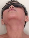 healing skin on neck 3/4/14