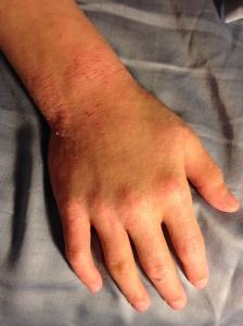 Eczematous patches 1/30/15