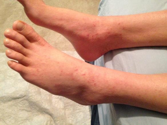 4/19/16 feet 19 days after bid Wang ointment