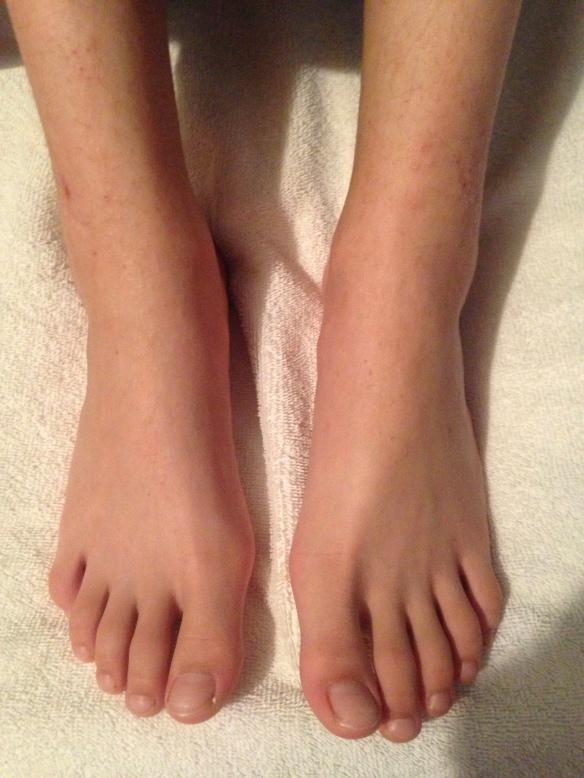 August 17, 2016 feet--left great toe healed