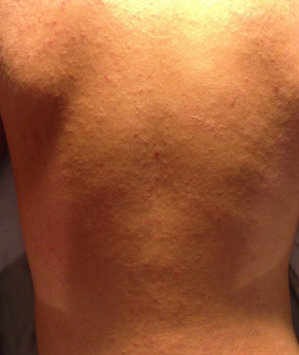 New onset raised rashy areas on back 8/19/16 around 1:30am