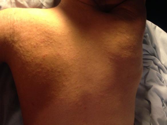 New onset raised rashy areas on left shoulder 8/19/16 around 1:30am
