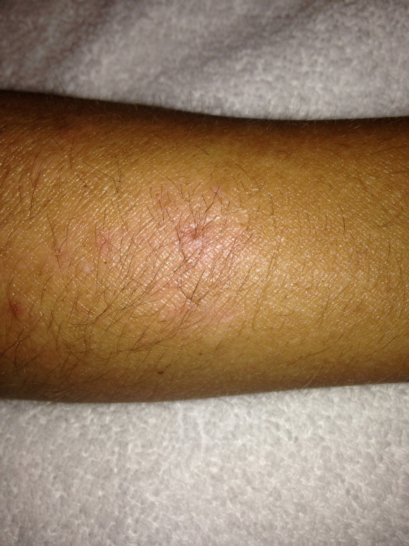 9/2/14--right forearm eczema patch improved