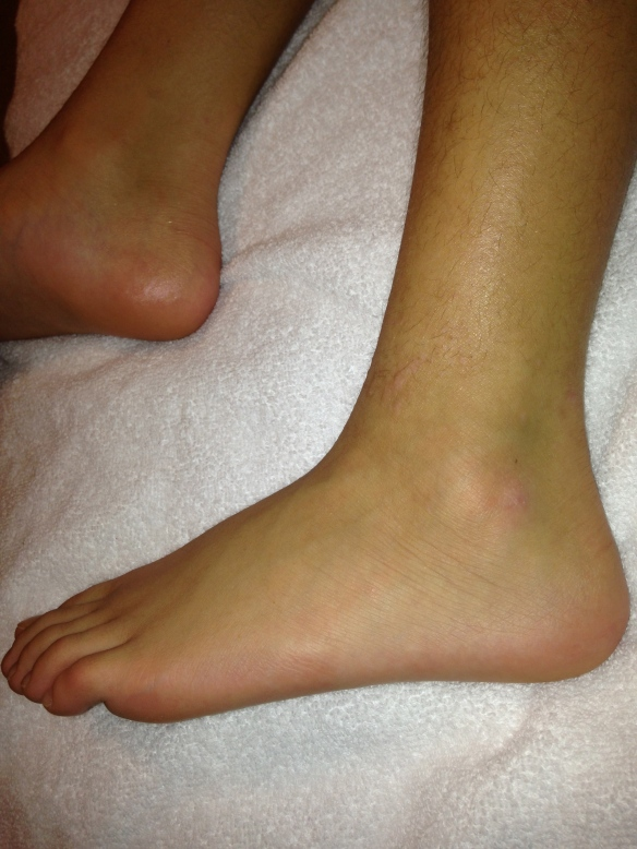 Left ankle, lateral aspect