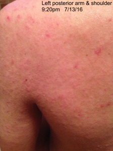 Persistent mild rash of left posterior shoulder and arm. 7/13/16 prior to taking antibiotics