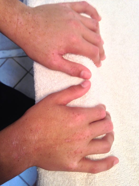 Sept. 6, 2016 (36 months TSW) Freckles on hands, areas of hypo pigmentation on tan skin from scratching