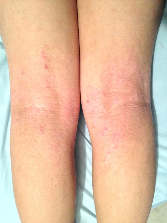 1/2/2017--1/5 to 2/5 scratching posterior knees